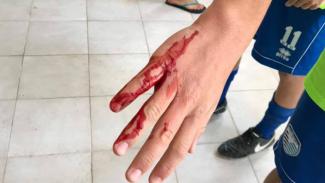 Aggrediti a sprangate dopo la partita: tre minorenni in ospedale